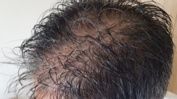 シャンプー直後の頭皮