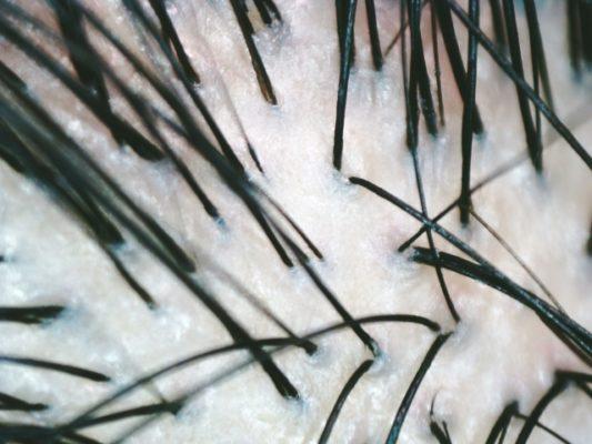 【失敗しない】抜け毛原因と対策!女性用育毛剤の効果的な使い方【美髪再生】