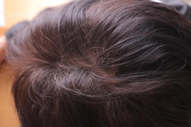禿げたくないなら成長期毛の短命化を予防