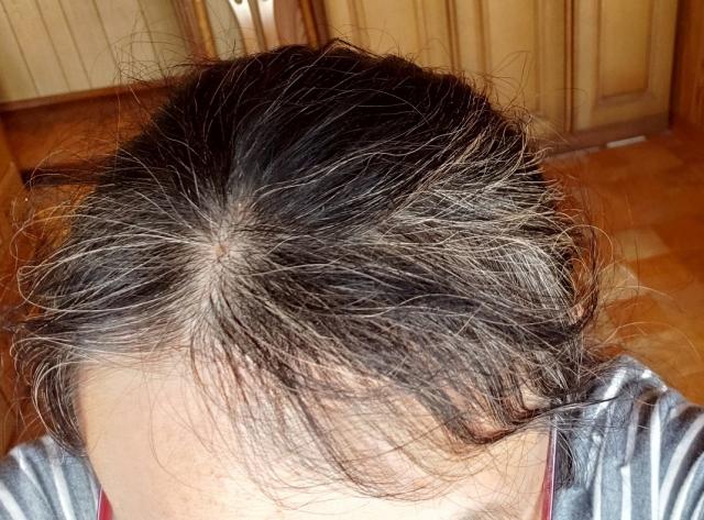 女性型脱毛症(FAGA)の女性