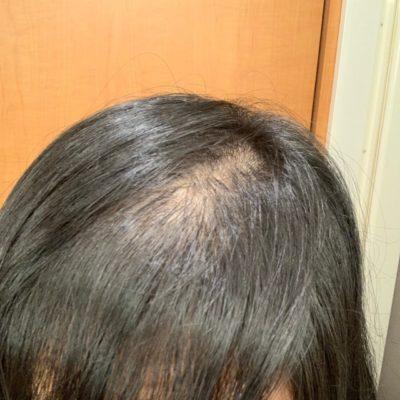 【女性の薄毛悩み】てっぺんはげ 分け目はげ原因 改善 治す方法