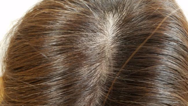 ミューノアージュの体験レビュー6ヵ月目 少し髪が生えてきた