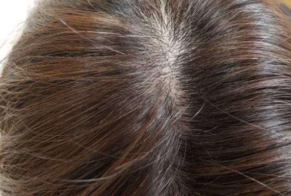 ミューノアージュの体験レビュー12ヵ月経過 完全に生えそろって改善した髪