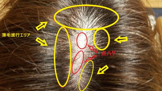 ミューノアージュ育毛剤 使用前の頭皮