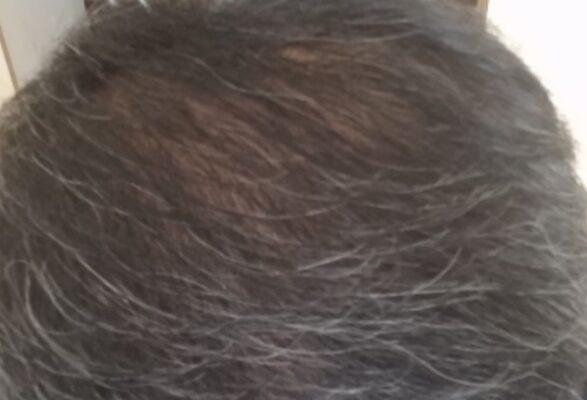シャンプー時に抜け毛が多く頭頂部が薄毛になった男性