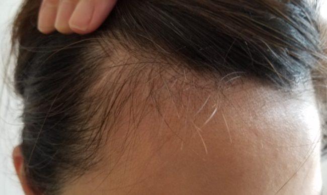 女性生え際はげが急増中!おでこハゲ確定は産毛にヒントがあるよ【男性も】