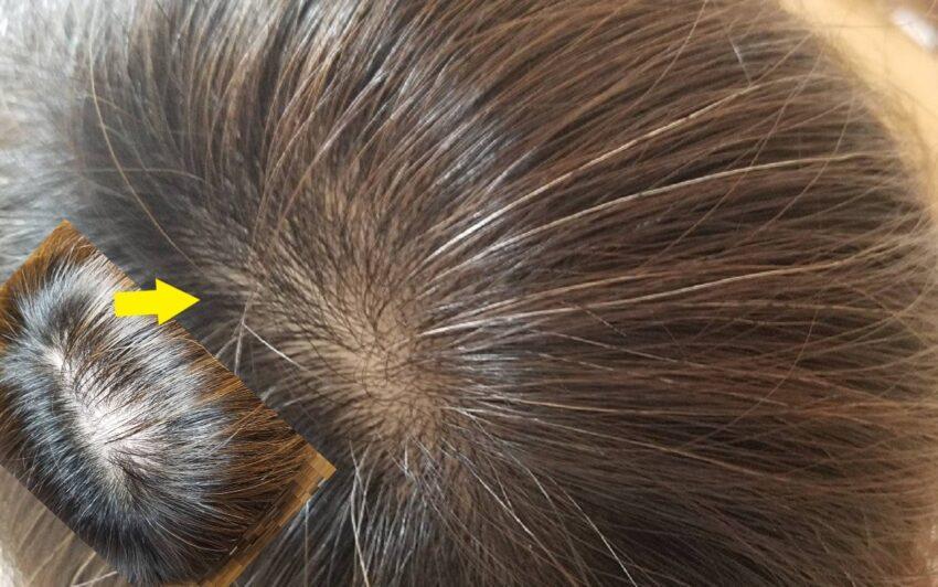 ヘアーバースサプリメント12ヵ月服用した頭髪状態