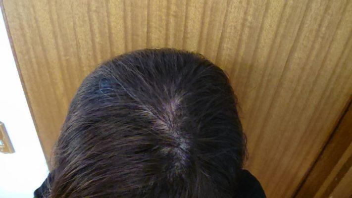 慢性休止期脱毛症になった女性の画像