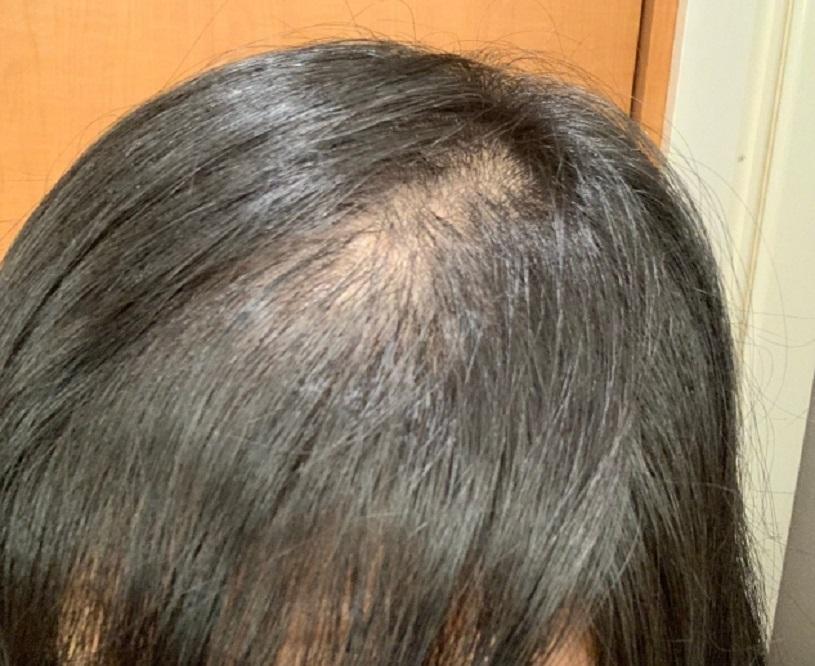 慢性休止期脱毛症の女性