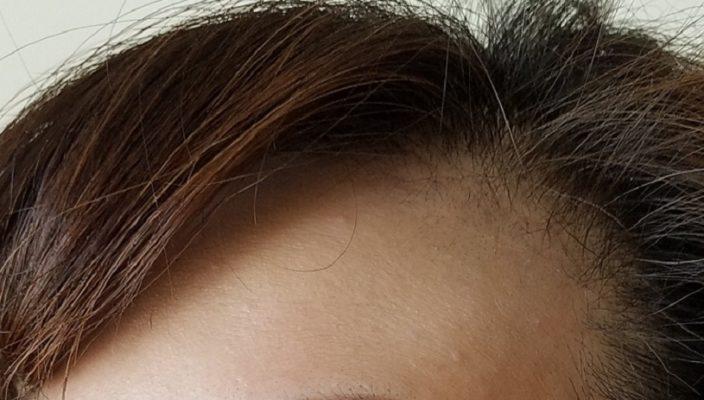 女性型脱毛症になった48才女性の生え際画像