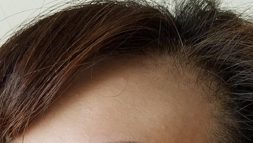 47才女性型脱毛症の生え際