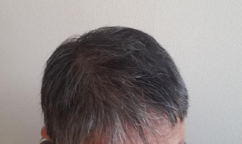 ニューモ育毛剤を数週間体験した柏木さんの口コミとレビュー