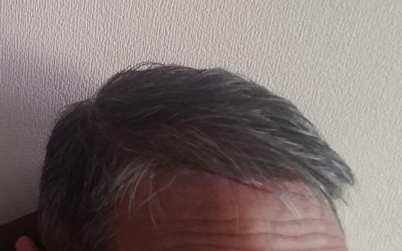ニューモで薄毛が治った柏木さんの画像 ニューモの効果は口コミどおり!評判は本当だった!
