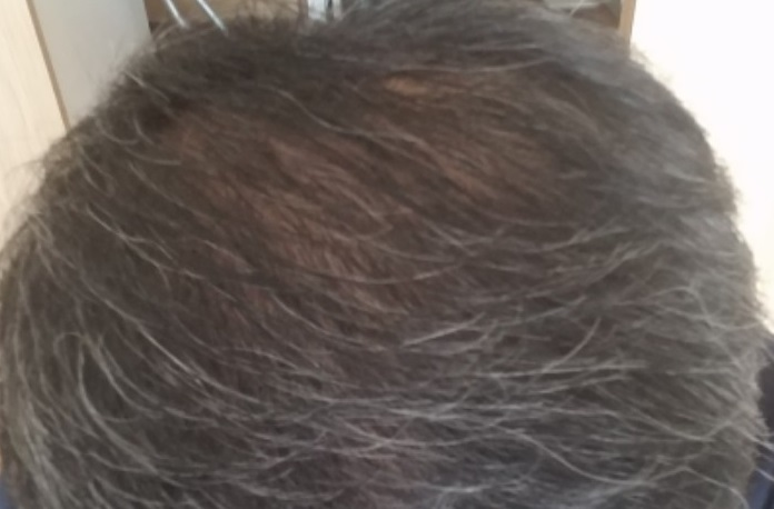 男性型脱毛症になった50代の男性